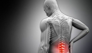 What-is-Chiropractic-Care-750x400